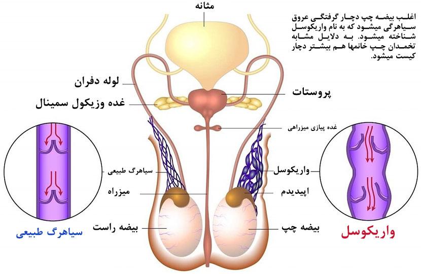 مقاله تخصصی: چرا اغلب بیضه چپ دچار واریکوسل میشود؟ یا چرا بیشتر کیستها در تخمدان چپ رشد میکند؟